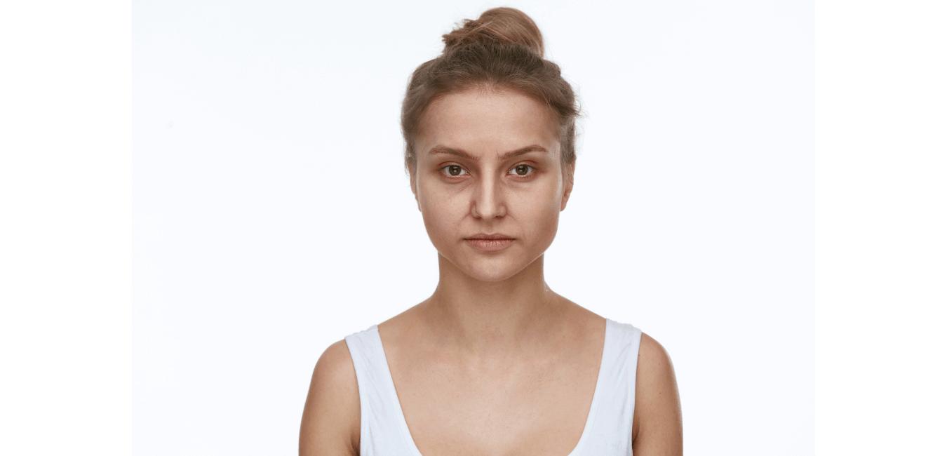 Femme qui a des cernes sous les yeux